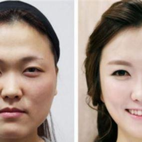 حجز نساء في المطار والسبب عمليات التجميل!