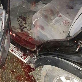 بالصور.. حادث مروع على طريق عام حلبا