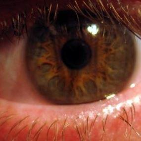 ما علاقة احمرار العين بفيروس كورونا؟