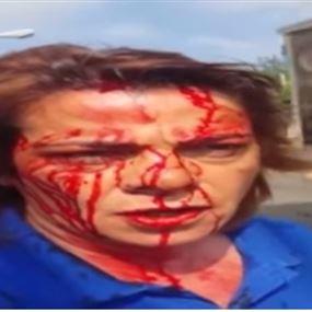بالفيديو: اعتداء على نساء.. بسبب تمديد خط كهرباء!