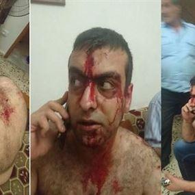 بالصور: الإعتداء على الأب ايلي كيروز ونجله بوحشية