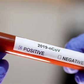 14 اصابة جديدة بفيروس كورونا في لبنان