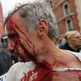 بالصور: 337 شخصاً أصيبوا في اشتباكات مع الشرطة الإسبانية