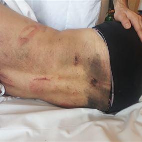 بالصور: فادي نادر يتعرض للضرب المبرح في جل الديب