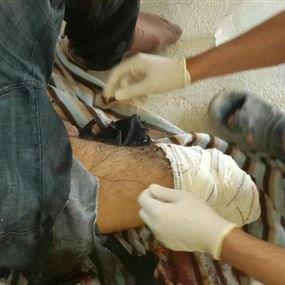 بالصور والفيديو: إصابة الوسيطين في معركة الجرود ومقتل أحدهما