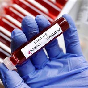 وزارة الصحة: 50 اصابة جديدة بفيروس كورونا