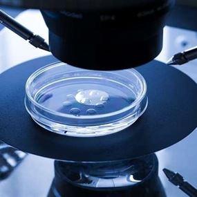 مغناطيس الحيوانات المنوية لتعزيز فرص الإنجاب