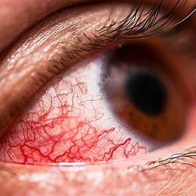 بعد كورونا... إنفلونزا العيون مرض خطير لا علاج له!